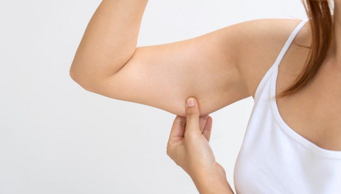 flacidez muscular